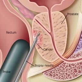 prostate_biopsy